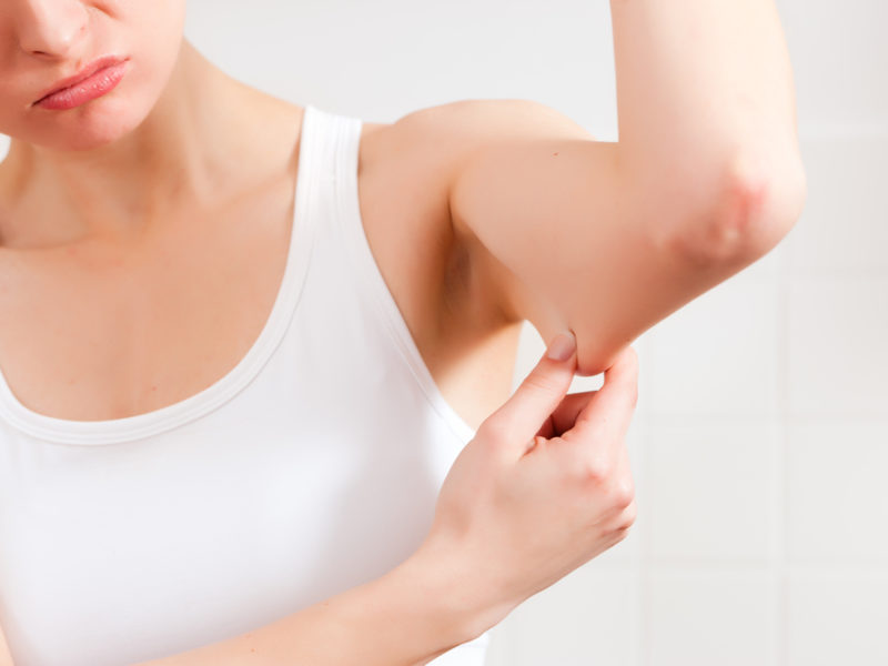lady-unhappy-with-loose-muscle-skin-on-arm-800x600